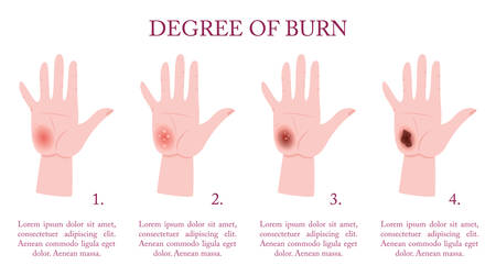 Skin burn injury stages infographic. Red skin and blisters, thermal Vecteurs