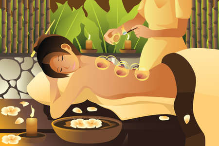 cupping therapy: A vector illustration of woman receiving a cupping treatment Illustration