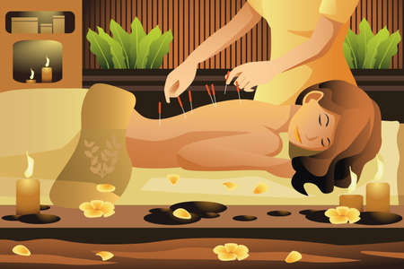 acupuntura china: Una ilustración vectorial de la mujer se extiende a mesa de masaje, obteniendo la terapia de acupuntura