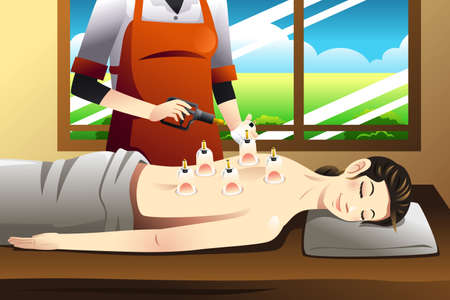 cupping therapy: A vector illustration of woman laying on chest with cupping treatment on back