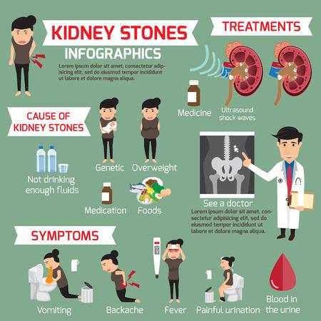 Infographie par des calculs rénaux. Déterminez les éléments et les symptômes du traitement médical avec le traitement des pierres rénales. Illustration vectorielle. Vecteurs