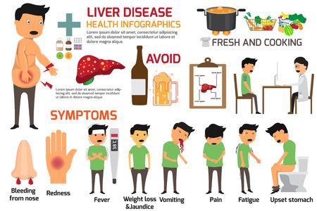 Infografía del vector de la enfermedad del hígado. Signos y síntomas de la enfermedad hepática. Ilustración del vector.