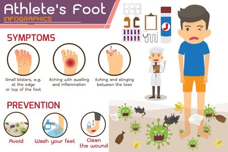 Athlete's foot or Hong kong foot Disease Infographics. wounds on foot. symptoms and prevention Athlete's foot. health and medicine cartoon vector illustration.
