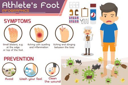 Infographie sur la maladie du pied d'athlète ou du pied de Hong Kong. blessures à pied. symptômes et prévention Pied d'athlète. illustration vectorielle de santé et médecine dessin animé.