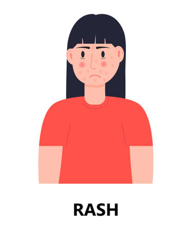 Rash icon vector. Unhappy girl with rash and acne on her face. Woman is infected by rubella, measles. Allergy, eczema illustration. Skin disease concept.