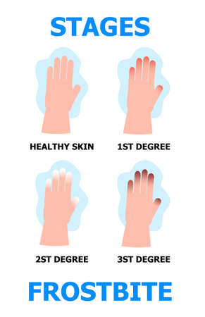 Frostbite stages info-graphic vector. Hypothermia in winter season. Problems with skin of frost fingers are shown. 스톡 콘텐츠 - 144927920