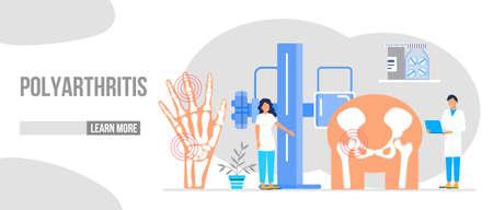 Rheumatoid arthritis of the foot. Tiny doctors treat rheumatism, osteoarthritis, make ultrasound, x ray. World arthritis day in October. Flat concept vector for landing page, banner, app. Vector Illustration