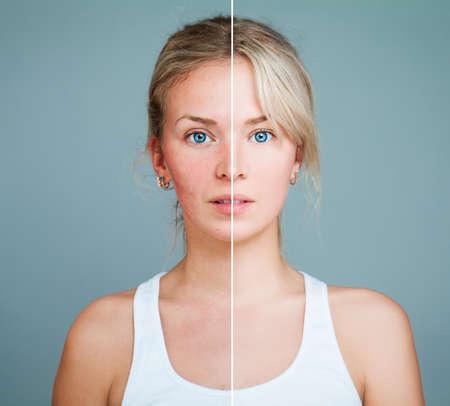 pubertad: Mujer Modelo Joven Con Problema De La Piel. Cara femenina dividida en dos partes una saludable y una insalubres. Tratamiento Facial, Medicina y Cosmetología