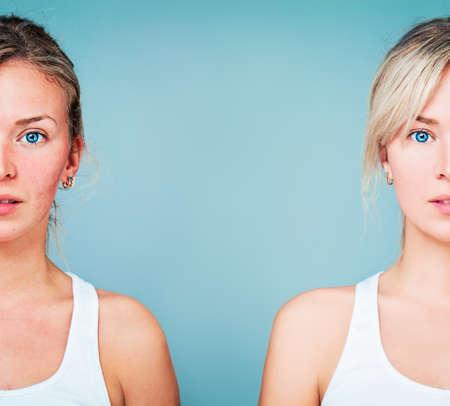 Mujer joven con la piel perfecta y el problema de piel. Piel saludable y sana después del tratamiento. El tratamiento facial, Medicina y concepto de la cosmetología Foto de archivo