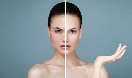 Young Female Face with Skin Problem and Clear Skin. Woman Showing Empty Copy Space on the Open Hand. Unhealthy and Healthy Skin After Treatment.