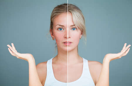 Young Woman with hands raised. Perfect Skin and Skin Problem. Unhealthy and Healthy Skin After Treatment. Facial Treatment, Medicine and Cosmetology Concept 스톡 콘텐츠