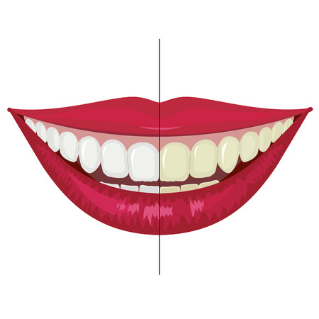 Illustration to demonstrate the effect of whitening and teeth cleaning. Vector. 向量圖像