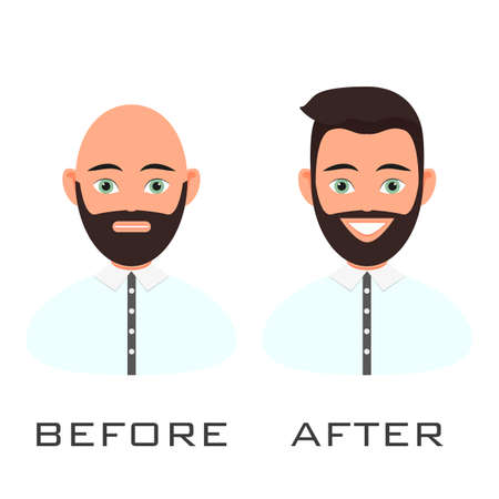 Man with alopecia problem before and after hair treatment and transplantation. Male baldness set in cartoon style. Perfect for clinics and diagnostic centers.