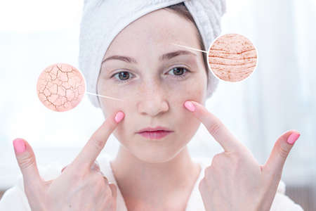 Beautiful young woman with a towel on her head looking at her dry skin with cracks and with first wrinkles. Circles increase the skin like a magnifying magnifier Stock Photo