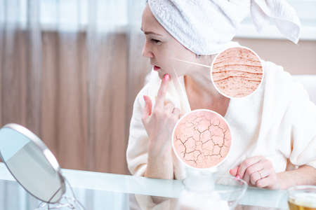 Beautiful young woman with a towel on her head looking at her dry skin with cracks and with first wrinkles. Circles increase the skin like a magnifying magnifier 版權商用圖片