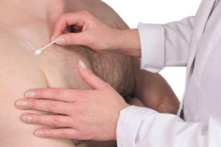 dermatologo: Dermatite - il medico cura l'infiammazione cutanea