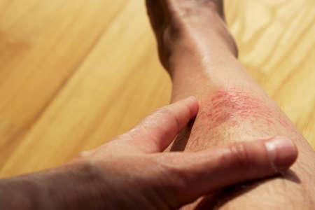 eczema Stock Photo - 22218160