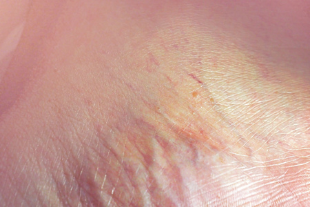 close up sole foot with many blood veins Foto de archivo