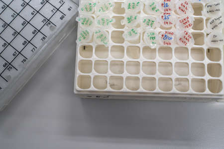 The products samples including RNA and protein are collected in 1.5ml of microtube and put them on the cryovial storage box. Products can be used for at least one year when user keep samples in - 80C. Stock fotó