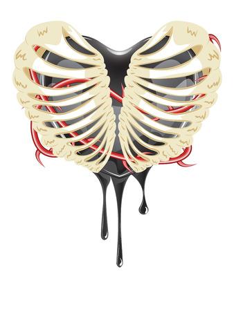 rib cage: Abstract cartoon bleeding black heart in a rib cage. Illustration