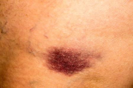 magulladura moratón