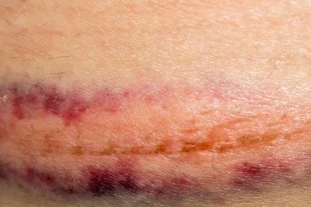 contusion: Big purple bruise on skin, close up background. Stock Photo