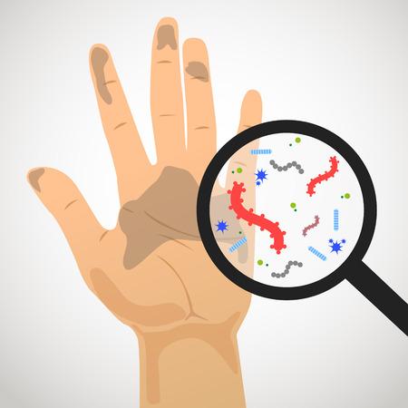 Afbeelding van vuile hand en de kiemen in het vergrootglas om te vergroten Vector Illustratie