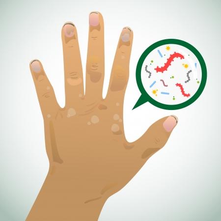 pathogen: Mano sucia y de la imagen causada por la infecci�n Vectores