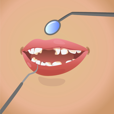 Open mouth and smile to show caries and decayed tooth
