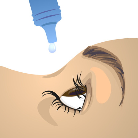 Vector of people use eye drops to treat the disease.