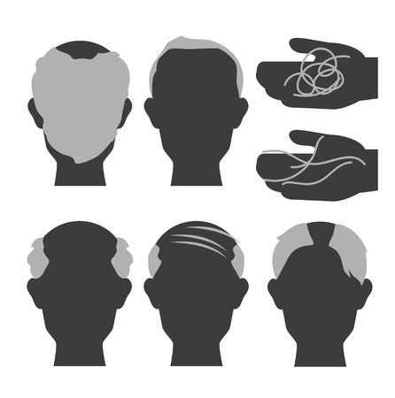 白い背景と脱毛と毛髪の損失のベクトル。  イラスト・ベクター素材