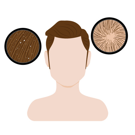 Vector of man hair and scalp problem.