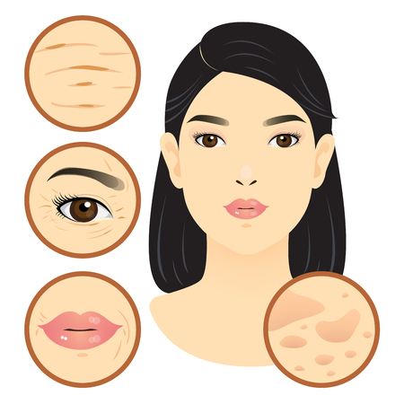 Different types of facial problem, wrinkle, dark spot.,