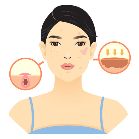 Woman face with acne and blemish, melasma. 向量圖像