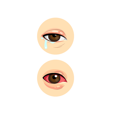 Human eye infection, have tears, red eyes color. Stock Illustratie