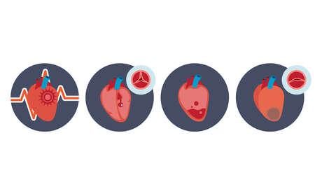 Set of icon heart disease, coronary artery, leaky heart, heart attack.