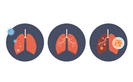 Set of icon lung disease, and healthy lung.