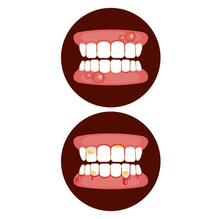 Periodontal - vector of swollen gum and tooth problem.