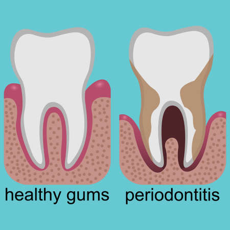 Difference between healthy gums and gums with periodontitis Ilustração