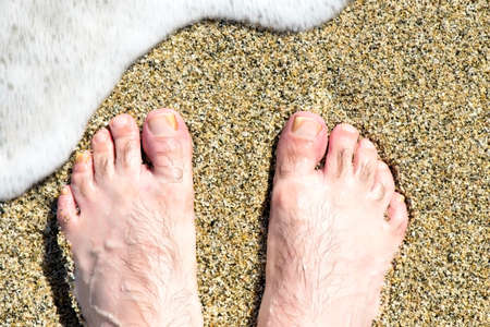 Man's foot with fungus infection on the sand