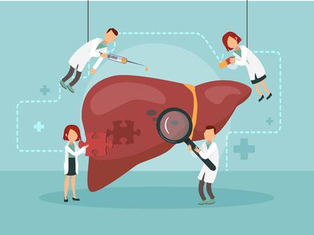 Artsen behandelen een zieke lever. Vector illustratie. Vector Illustratie