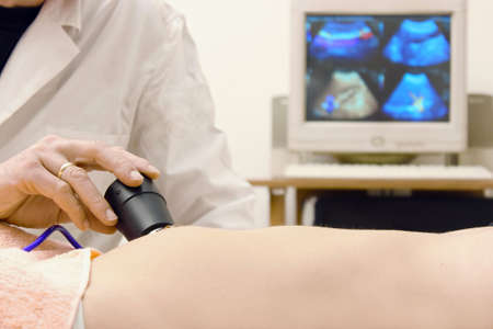 Doctor works an ultrasound examination of the patient, photography photo