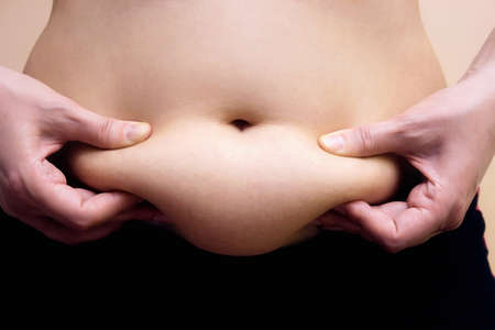 bloating: Obese women shows fat on her stomach, Fat on stomach, Photography