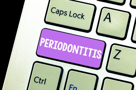 Handwriting text Periodontitis. Concept meaning Swelling of the tissue around the teeth Shrinkage of the gums.