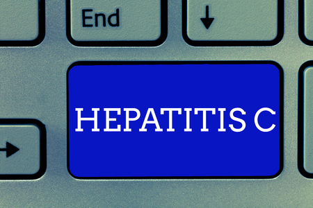 Handwriting text Hepatitis C. Concept meaning Inflammation of the liver due to a viral infection Liver disease.