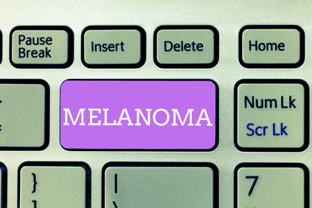Writing note showing Melanoma. Business photo showcasing A malignant tumor associated with skin cancer Benign moles. 免版税图像