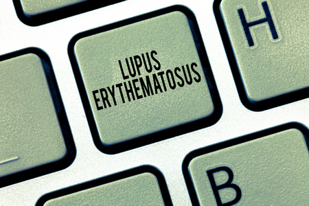 Text sign showing Lupus Erythematosus. Conceptual photo inflammatory condition caused by an autoimmune disease. Stok Fotoğraf - 112827646