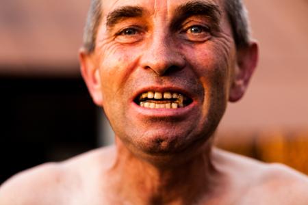 Alter Mann sucht den Fotografen intensiv. Hemdloser Großvater, der seine gealterten Zähne zeigt. Falten und große Tränensäcke im Gesicht. Konzept für den Alterungstag der Großeltern Standard-Bild