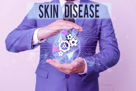 Conceptual hand writing showing Skin Disease. Concept meaning any of the diseases or disorders that affect the huanalysis skin Male human wear formal suit presenting using smart device