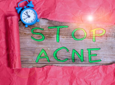 Writing note showing Stop Acne. Business concept for control the occurrence of inflamed sebaceous glands in the skin Alarm clock and torn cardboard on a wooden classic table backdrop Stock Photo